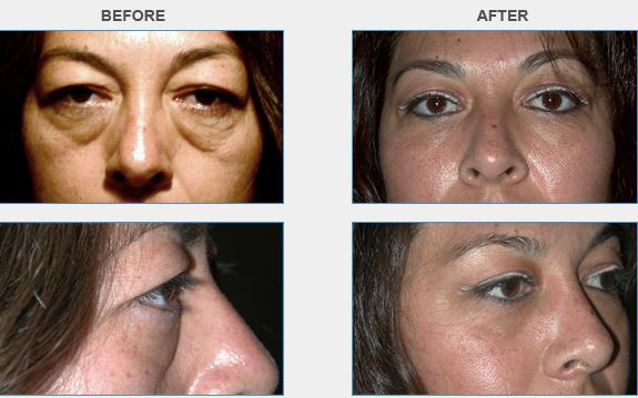 Blepharoplasty | Orange