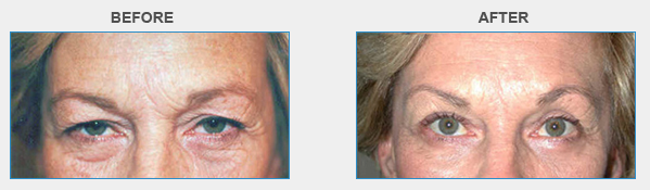 Before & After Photos | MD Eyecare